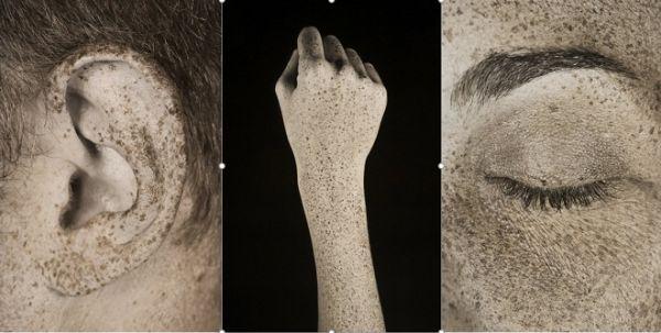 các bộ phận trên cơ thể khi tiếp xúc với ánh mặt trời