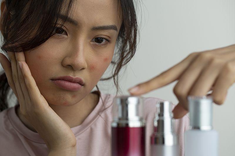 dưỡng ẩm đúng cách sẽ giúp ngăn ngừa và trị mụn?