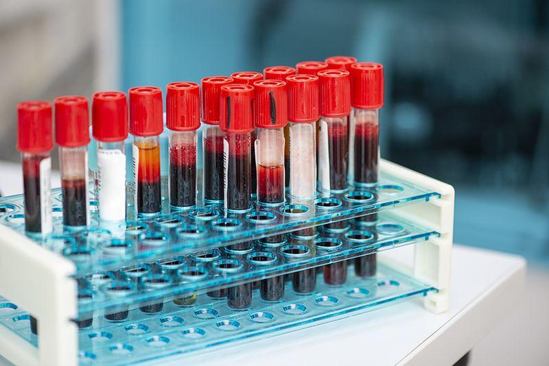 Chẩn đoán bệnh tật thông qua phân tích máu bằng AI